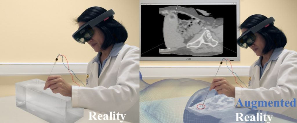 AR simulation for surgery
